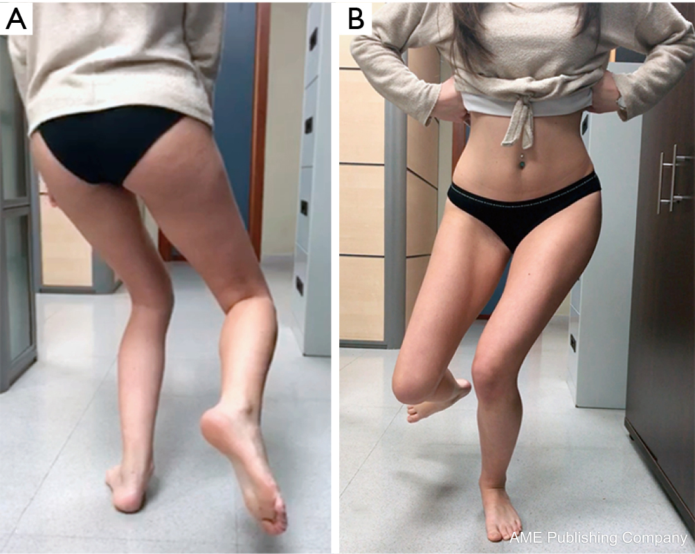 Evaluation Of Anterior Knee Pain Patient Clinical And