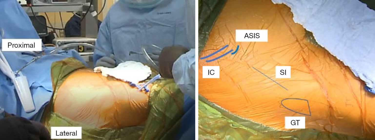 Anterior approach total hip replacement (THA) with a