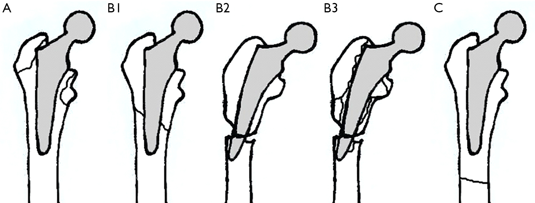 Management of peri-prosthetic fractures around total hip