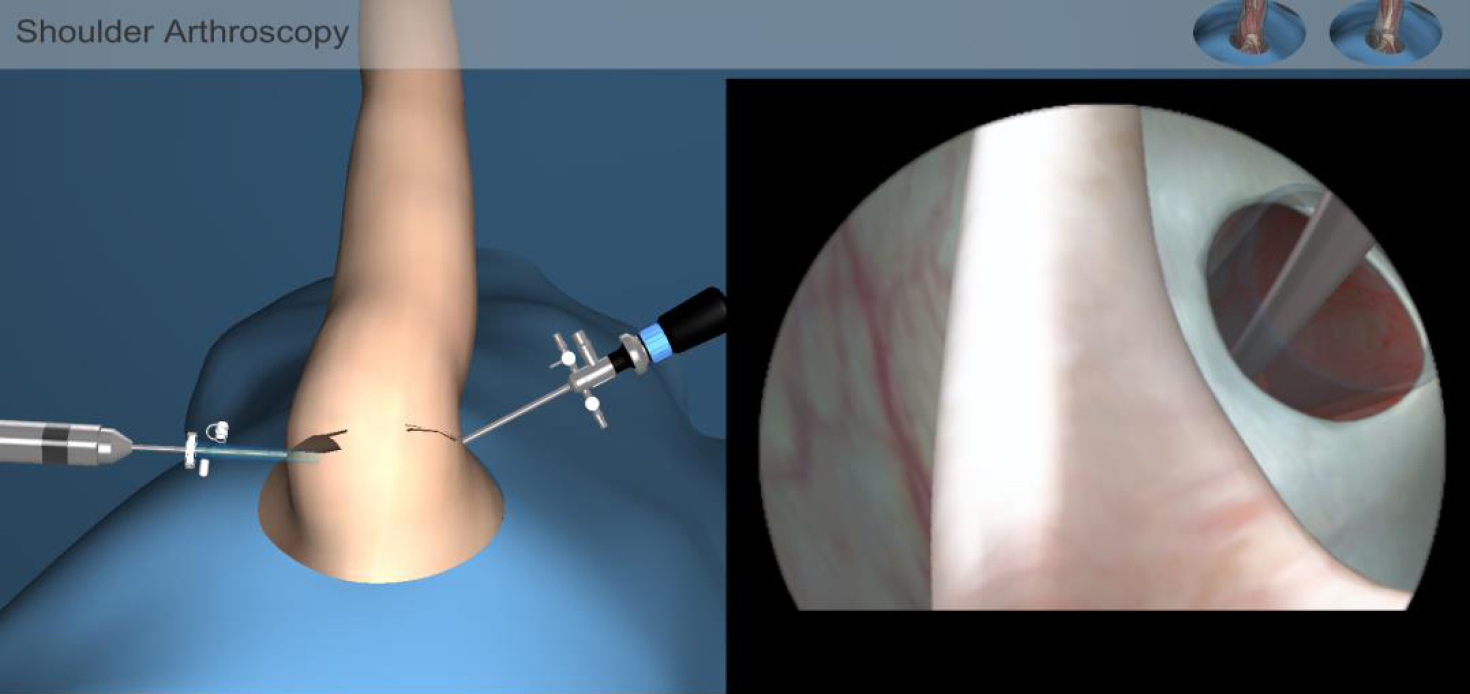 3364127167 Figure 4 The shoulder arthroscopic surgery simulator. This can be used in  medical surgery training.